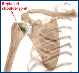 Replaced Shoulder Joint